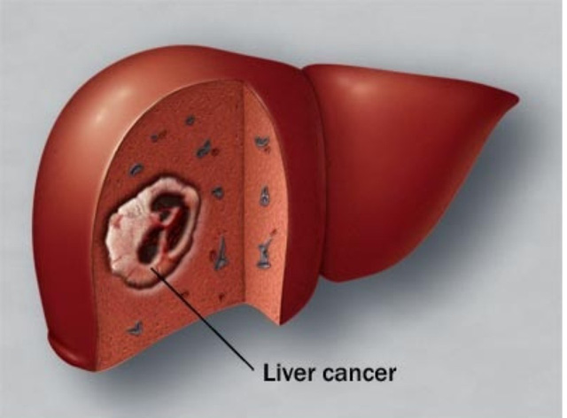 Hình ảnh gan bị ung thư (Ảnh minh họa)