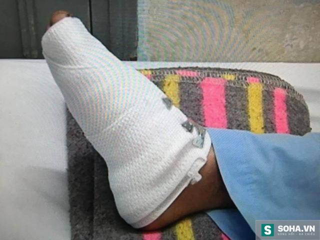 Chân của thượng sĩ Tú bị thương trong lúc khống chế đối trượng Thanh.