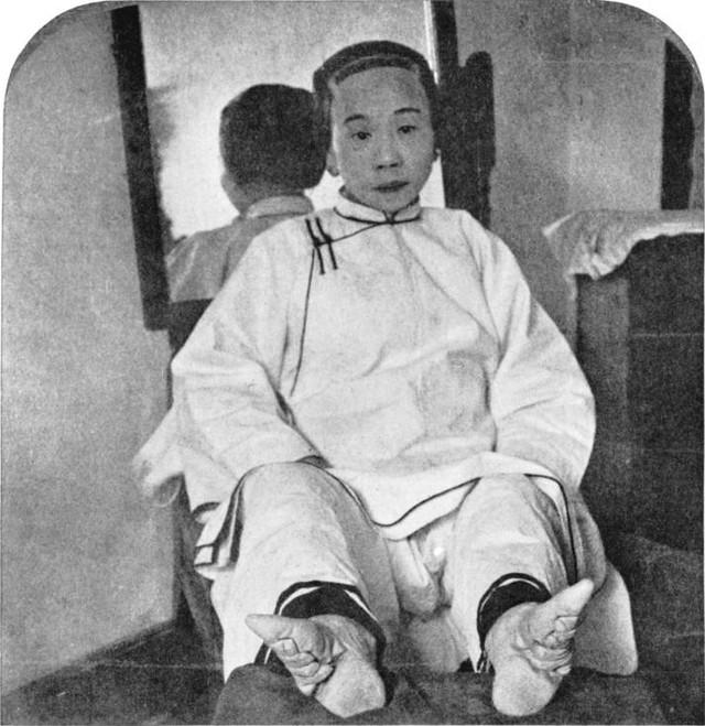 Bó chân được xem là một trong những yếu tố đánh giá phi tần của Minh triều. (Ảnh: nguồn internet).