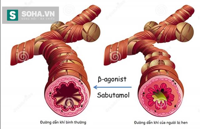 Salbutamol giúp làm giãn các cơ ở khí quản người bị hen.