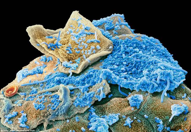 Dưới kính hiển vi điện tử, các nhà khoa học có thể chụp lại hình ảnh của những con vi khuẩn, đang ẩn nấp ở các khu vực tăm tối nhất trong khoang miệng con người.