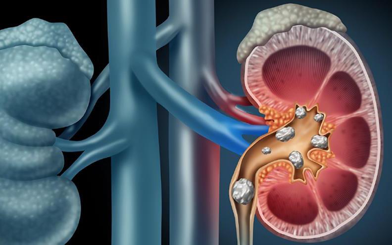 Sirnakarang F – Giải pháp vượt trội trong điều trị sỏi thận