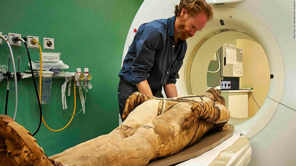 Chụp CT xác ướp lâu đời nhất thế giới: Chuyên gia hóa giải những câu hỏi từ 7000 năm trước - Ảnh 4.