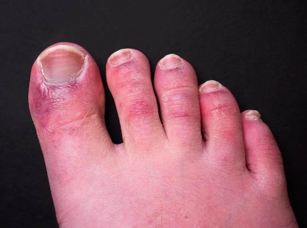 Triệu chứng Covid-19 đáng sợ ở chân: Chuyên gia vạch mặt thủ phạm gây ra 'ngón chân Covid' - Ảnh 1.