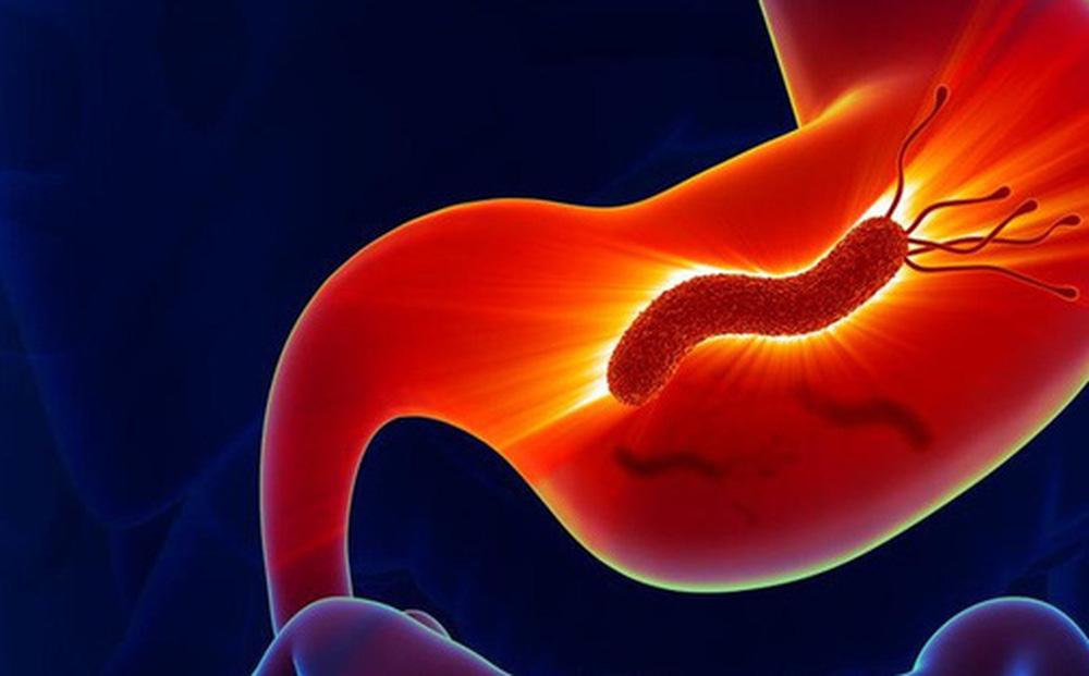 Nhiễm vi khuẩn Helicobacter pylori và nỗi lo ung thư dạ dày
