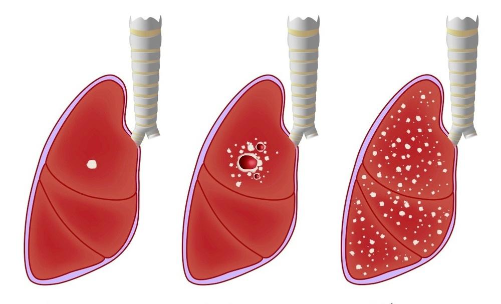 Căn bệnh nguy hiểm ở phổi gây triệu chứng ho, sốt, đổ mồ hôi đêm: Ai là người có nguy cơ mắc? - Ảnh 3.