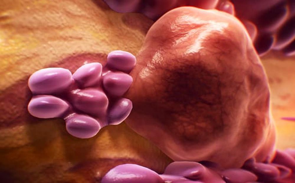 Loại ung thư nào phổ biến nhất năm 2040?