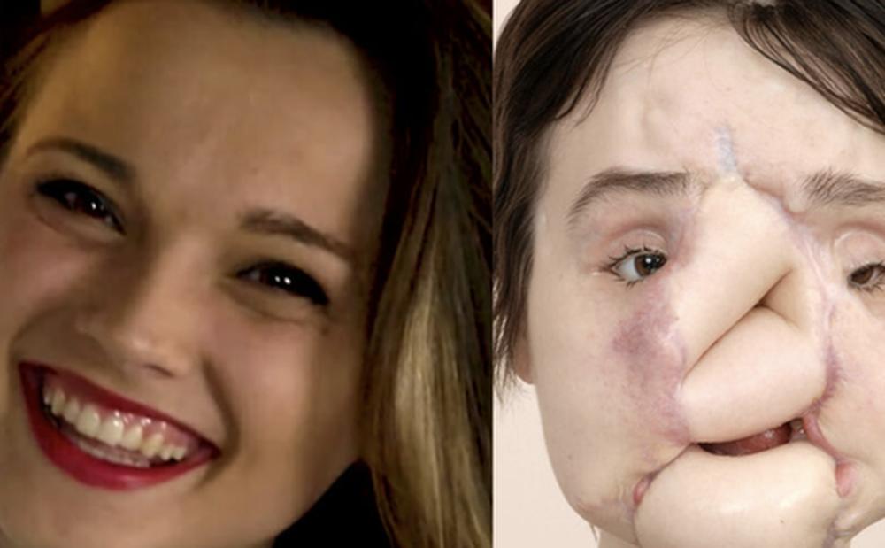 Nổ súng vào mặt tự tử nhưng bất thành, cô gái xinh đẹp khiến khuôn mặt mình bị phá huỷ và diện mạo sau 6 năm gây ngỡ ngàng