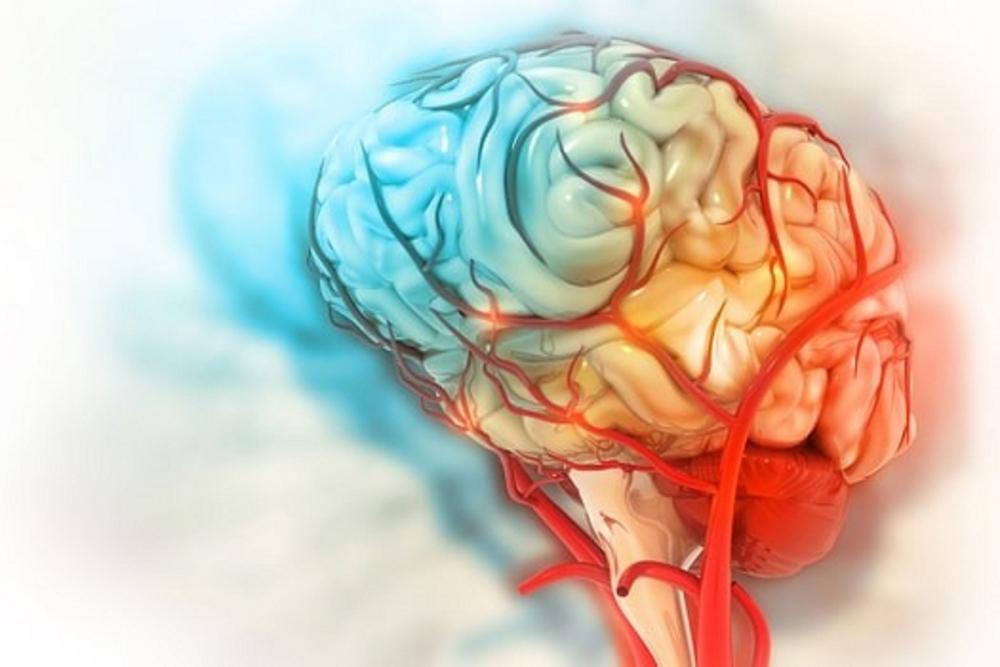 COVID-19 có thể gây tổn thương não lâu dài - Ảnh 1.