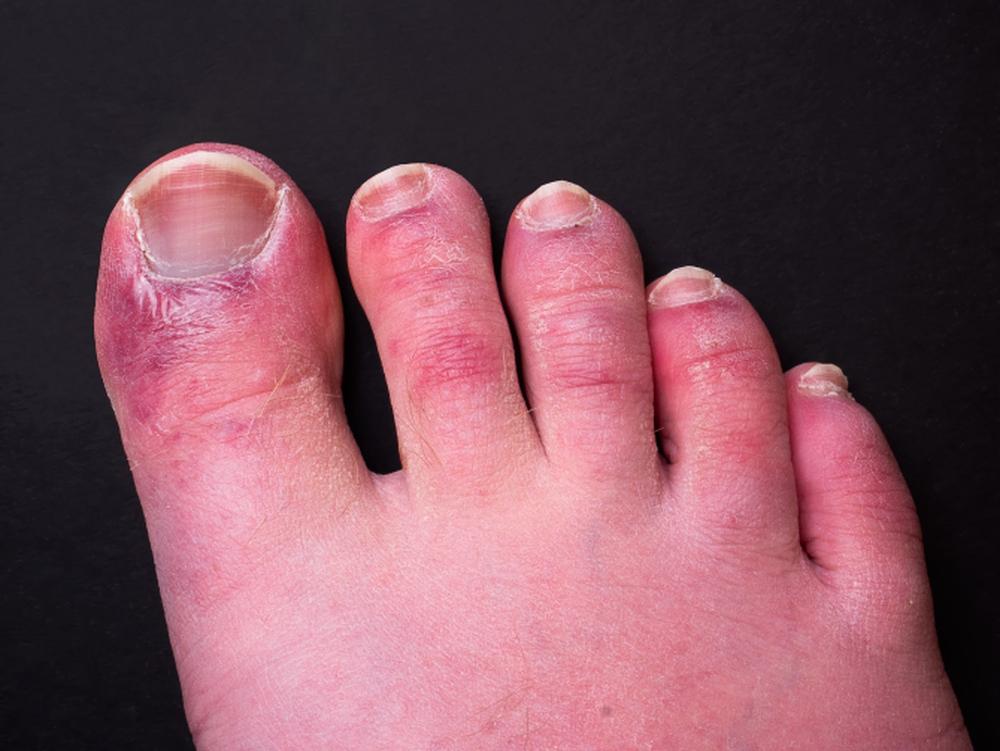 21 triệu chứng COVID-19 cần biết ngay lập tức - Ảnh 4.