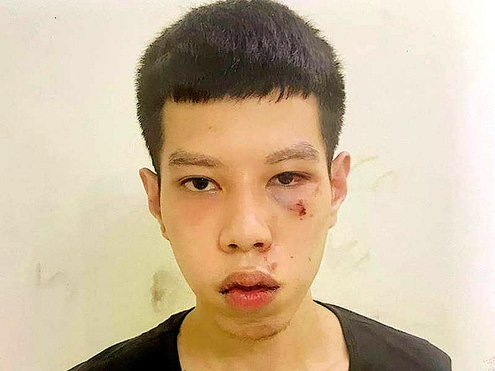 Hà Nội: Anh trai lấy tiền cướp giật chia cho em khiến cả 2 vướng vòng lao lý - Ảnh 1.