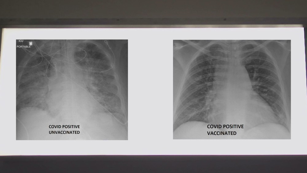 So sánh ảnh chụp phổi của bệnh nhân COVID-19 đã tiêm và chưa tiêm vaccine, phát hiện điều kinh ngạc - Ảnh 3.
