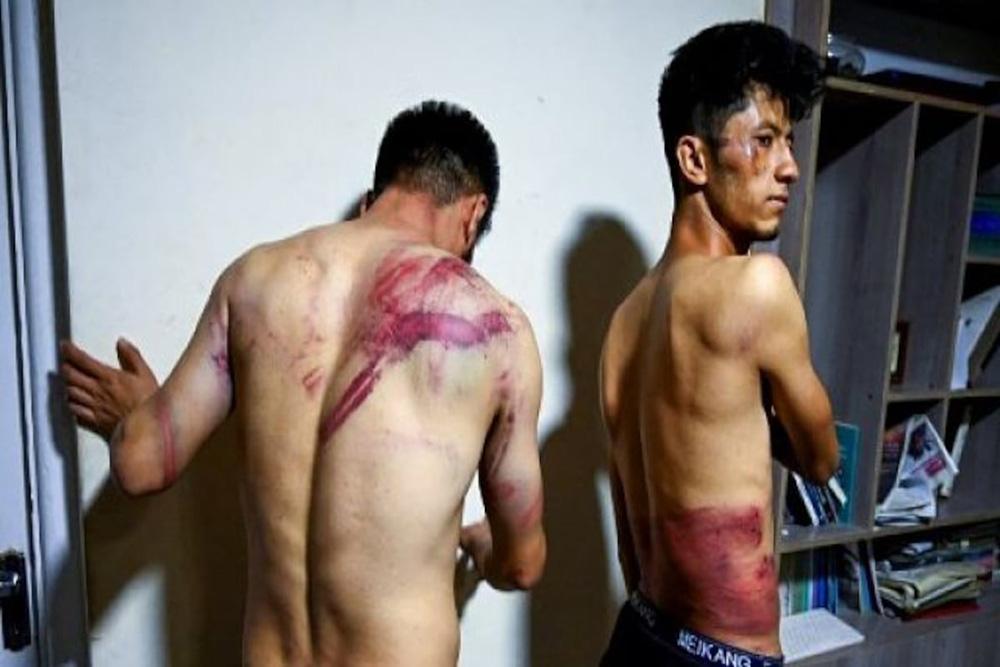 Dùi cui, roi điện vun vút quất vào người: Taliban đánh đập dã man hai nhà báo Afghanistan - Ảnh 1.