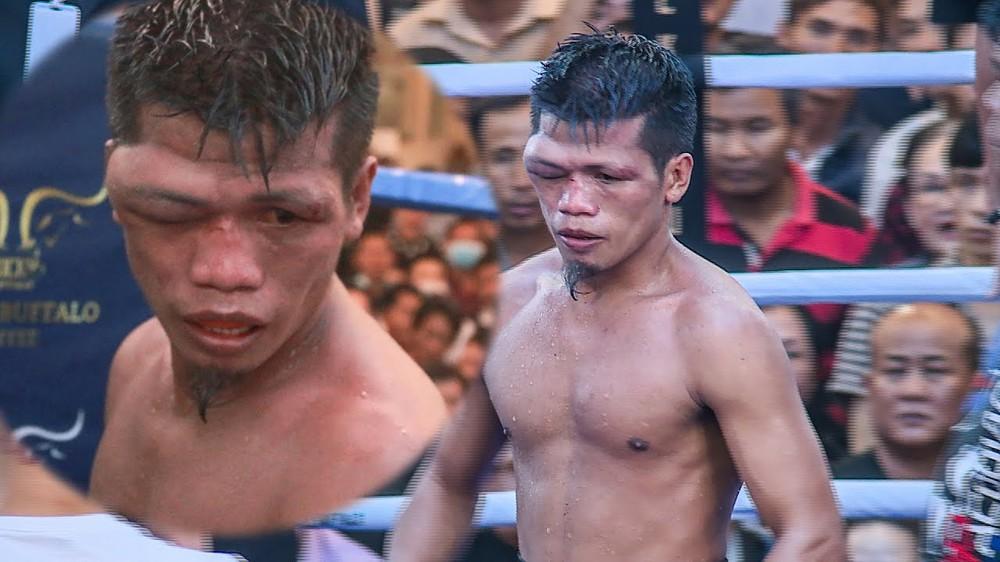Võ sĩ tập tại Việt Nam đấm cho đồng hương của Manny Pacquiao bị biến dạng cả khuôn mặt - Ảnh 2.