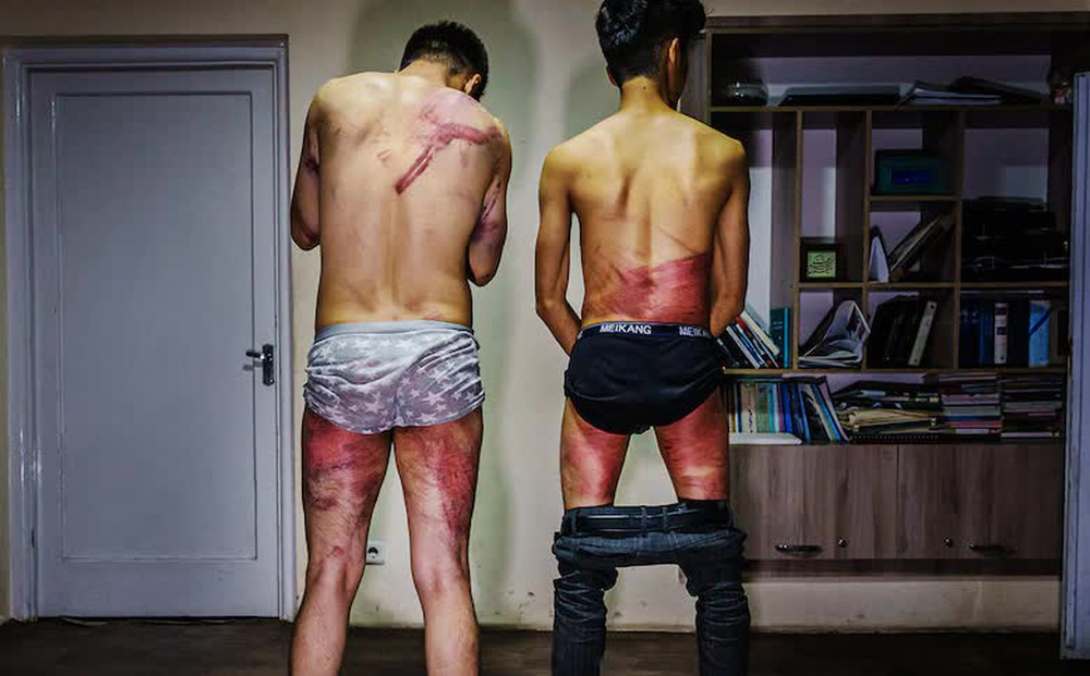 Dùi cui, roi điện tới tấp quất vào người: Taliban đánh đập dã man hai nhà báo Afghanistan