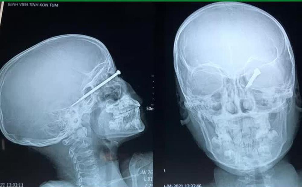 Bé trai 8 tuổi bị mũi tên bắn xuyên mắt, găm sâu vào sọ não