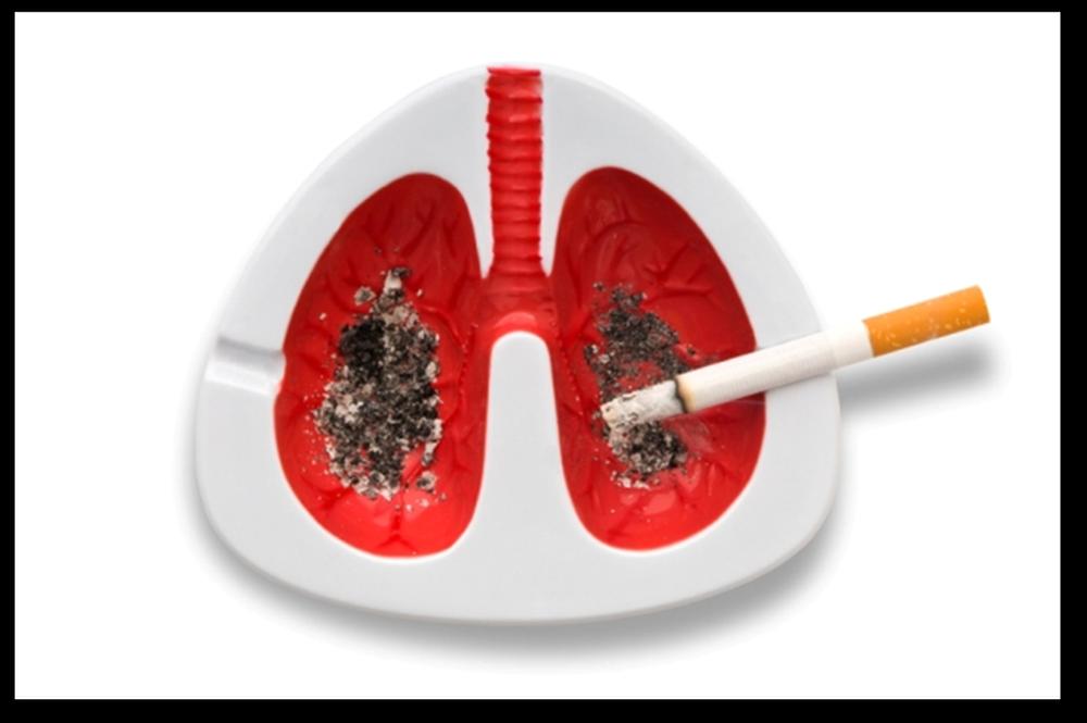 Ung thư phổi có tỷ lệ tử vong rất cao: 4 nhóm người cần đặc biệt chú ý đến việc khám phổi - Ảnh 3.