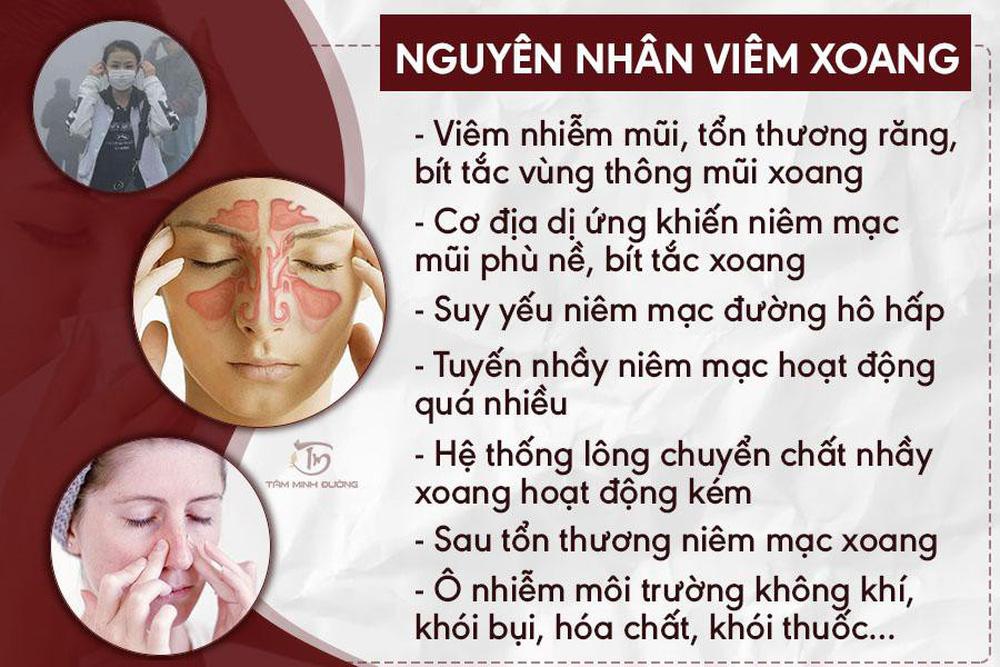 Viêm xoang là gì? Cách chữa bệnh viêm xoang mũi, sàng, hàm, cấp - Ảnh 1.