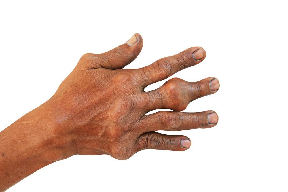 Nhiều người vô tình làm những việc này, đến khi đau không đi nổi mới biết bị mắc bệnh gút - Ảnh 2.