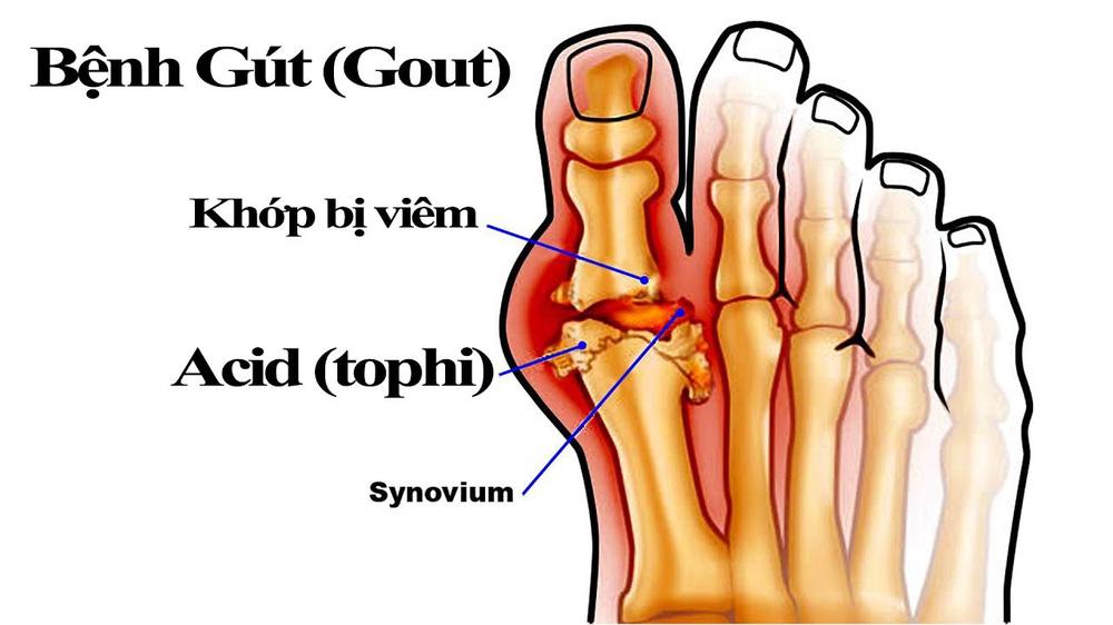 Nhiều người vô tình làm những việc này, đến khi đau không đi nổi mới biết bị mắc bệnh gút - Ảnh 3.