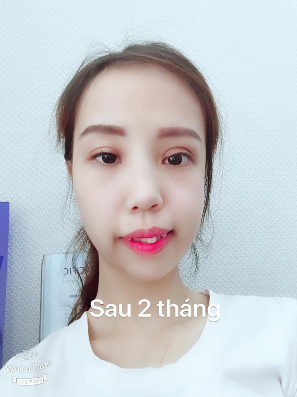 Bị bạn bè trêu chọc vì teo nửa bên mặt, cô gái Hà Nội lột xác sau phẫu thuật thẩm mỹ - Ảnh 10.