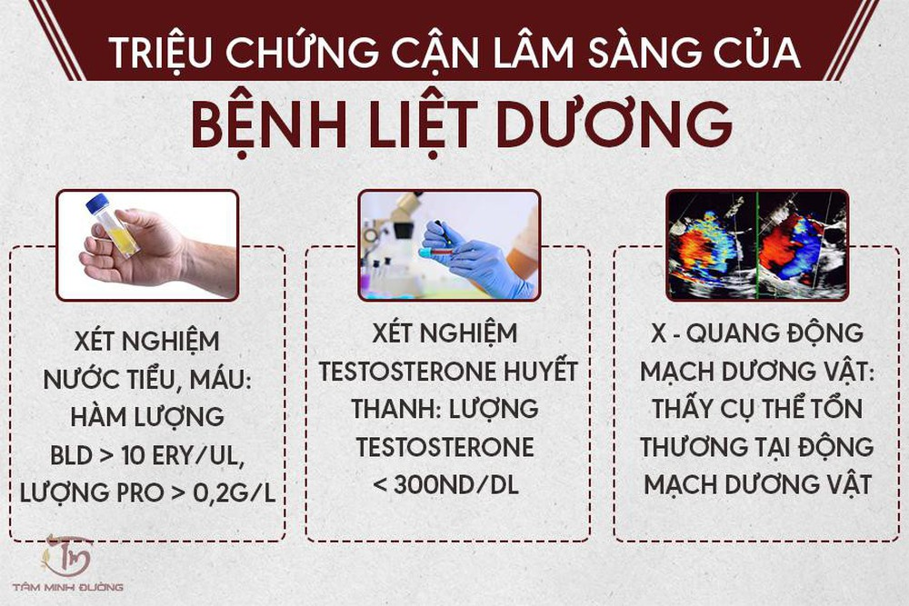 Liệt dương là gì? Nguyên nhân, dấu hiệu và cách chữa bệnh hiệu quả - Ảnh 2.