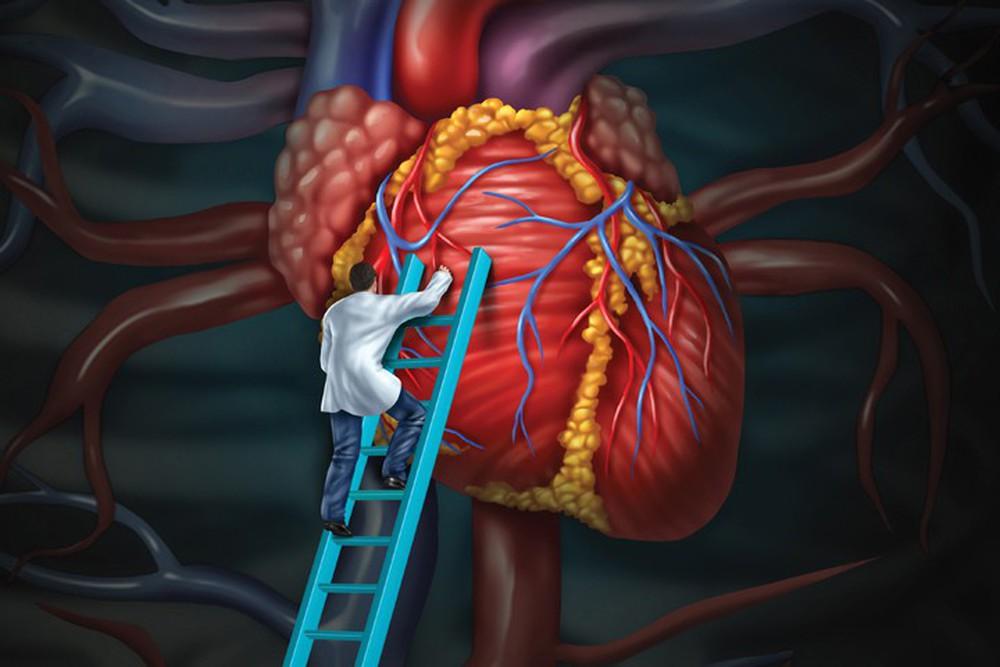 Nhóm người dễ mắc mỡ máu cao: Cách nhận biết và phòng tránh hiệu quả, dấu hiệu báo động - Ảnh 3.