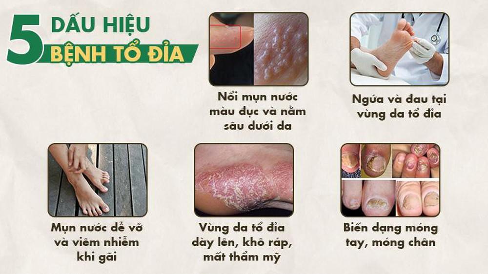 Bệnh eczema tổ đỉa là gì? Dấu hiệu và cách chữa bằng thảo dược lành tính - Ảnh 1.