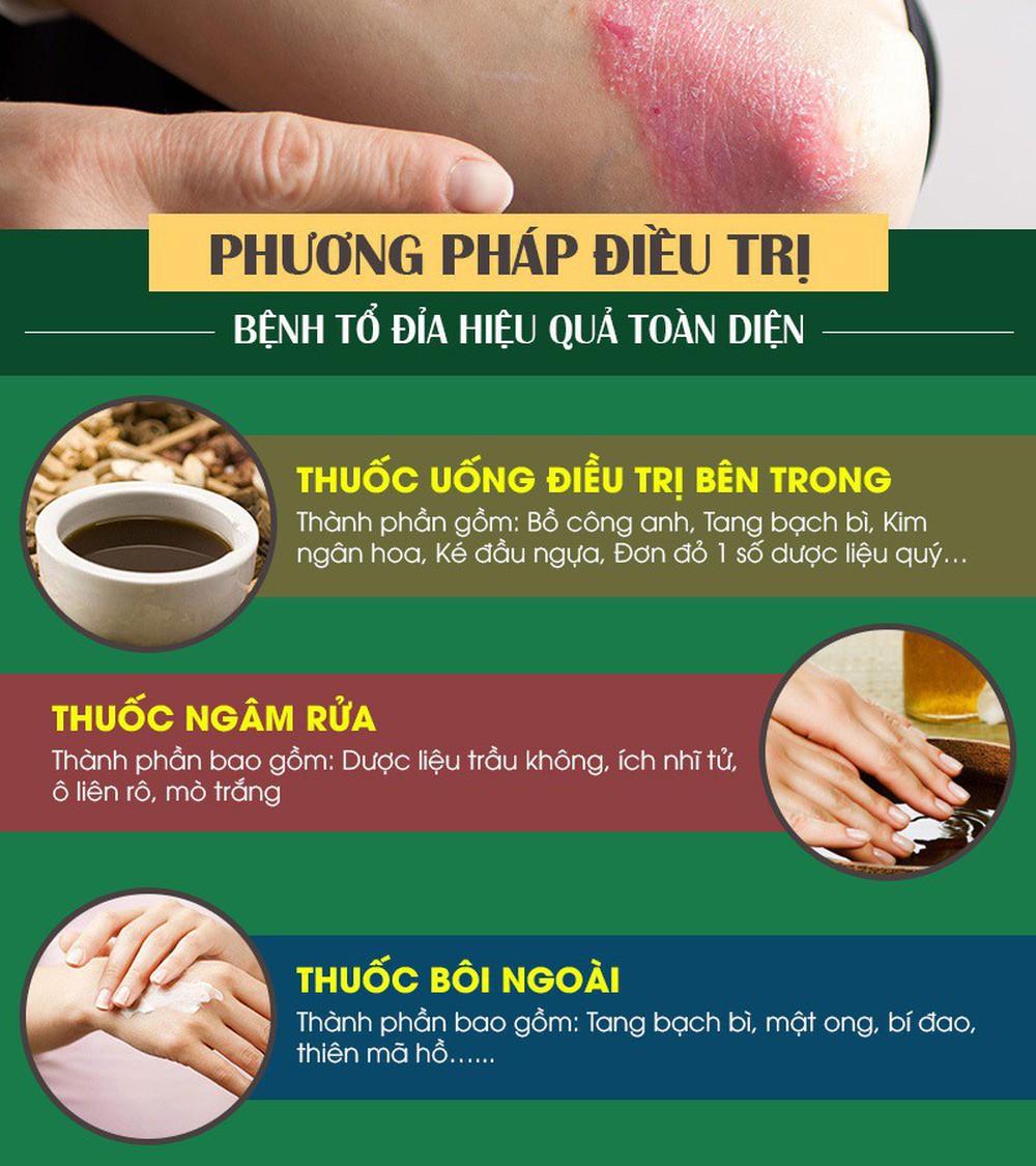 Bệnh eczema tổ đỉa là gì? Dấu hiệu và cách chữa bằng thảo dược lành tính - Ảnh 2.