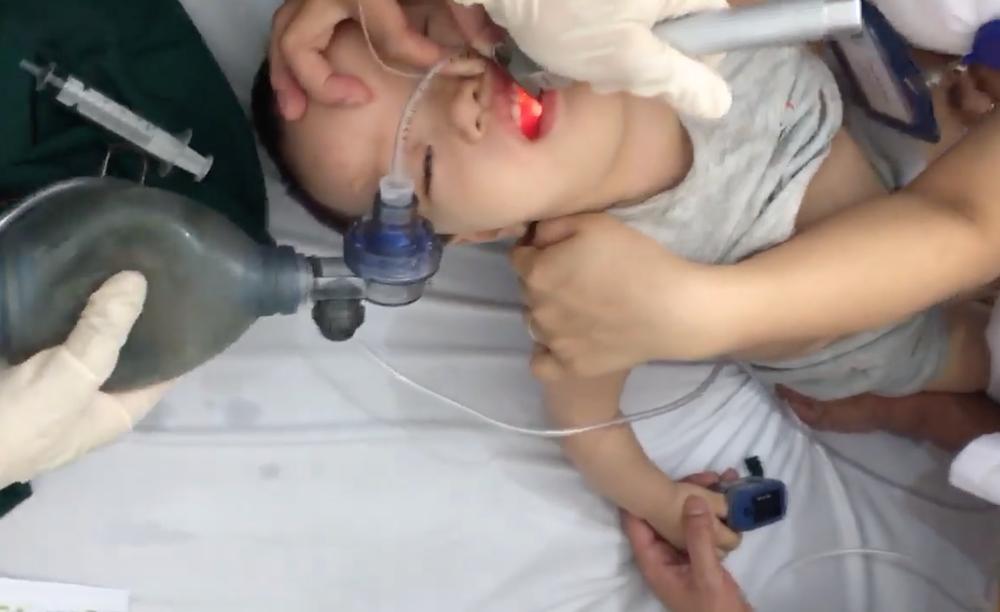 7 phút sinh tử cứu bé trai 21 tháng tuổi bị hóc thạch rau câu - Ảnh 3.