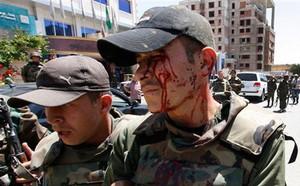 Hezbollah: Với các cuộc tấn công mới ở đông Syria, Mỹ - Israel đã vượt qua lằn ranh đỏ - ảnh 2