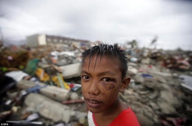 Cậu bé với khuôn mặt bị thương đứng trước đống đổ nát hoang tàn.
