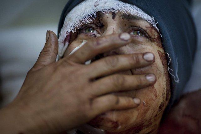Một phụ nữ có tên Aida khóc sau khi bị thương do đạn pháo của quân đội chính phủ bắn trúng nhà bà ở Idlib, Syria, ngày 10/3/2012. Chồng và 2 đứa con của bà Aida thiệt mạng trong vụ tấn công này.