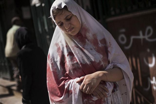 Một phụ nữ bị thương vẫn cảm thấy sốc khi rời bệnh viện ở Aleppo, Syria, vào ngày 20/9/2012. Hàng chục thân thường thiệt mang, bao gồm 4 trẻ em trong một cuộc tấn công bằng đàn pháo của quân đội chính phủ vào Aleppo.