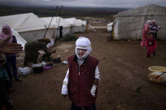Cậu bé Abdullah Ahmed, 10 tuổi, bị bỏng trong một cuộc không kích của quân đội chính phủ, đứng bên ngoài một trại tại nạn ở ngôi làng Atmeh, Syria, ngày 11/12/2012.