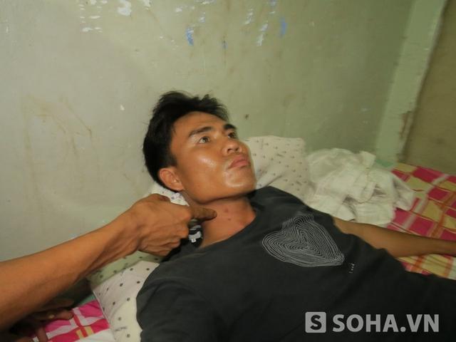 Vết bầm vẫn còn trên cổ anh Tình sau 2 ngày xảy ra vụ việc