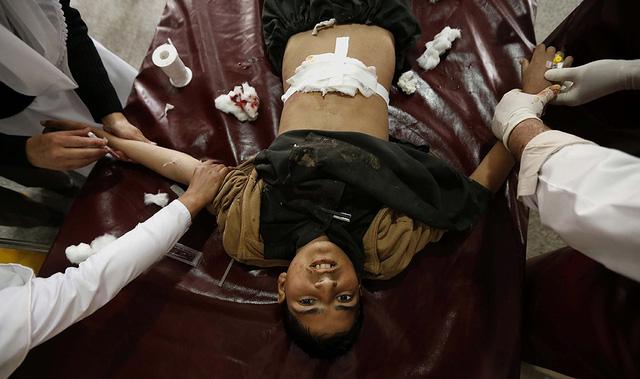 Một cậu bé bị thương trong vụ đánh bom tự sát, được điều trị tại bệnh viện ở Peshawar, Pakistan.