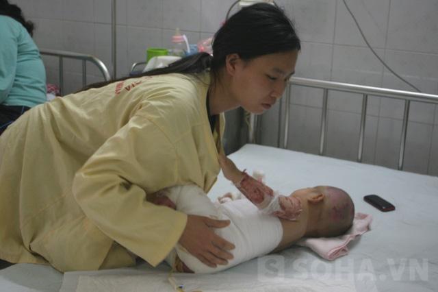Chị Thủy (mẹ bé Vy) đang chăm sóc Vy trong bệnh viện