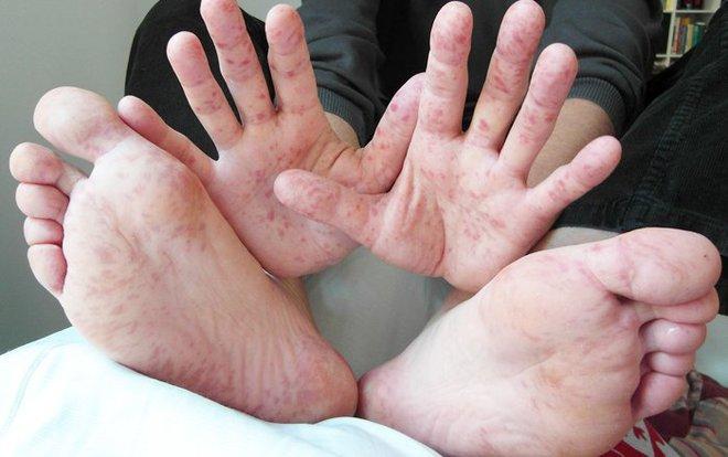2 dấu hiệu biến chứng cực kỳ nguy hiểm của bệnh tay chân miệng cha mẹ cần nắm để theo dõi kỹ - Ảnh 1.