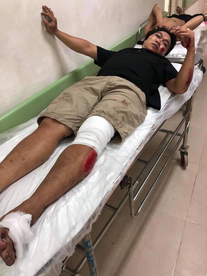 Truy đuổi thanh niên nghi trộm xe máy, 1 thành viên săn bắt cướp Biên Hòa té tử vong - Ảnh 1.