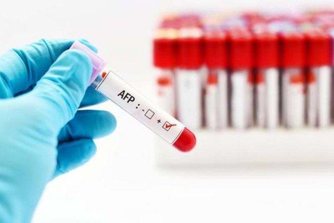 Ung thư gan không khó phát hiện: Bác sĩ chỉ 2 cách tầm soát phát hiện sớm, tăng cơ hội điều trị - Ảnh 1.