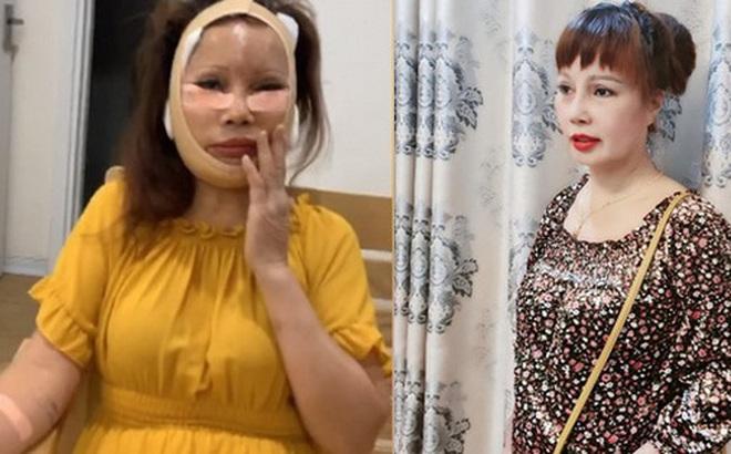 """Cô dâu 62 tuổi tự tin khoe diện mạo mới sau cuộc """"đại phẫu"""" bị biến chứng lệch mặt: Nhan sắc hiện tại gây ngỡ ngàng"""