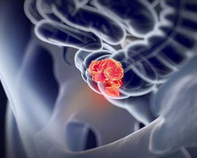 Loại ung thư thường gặp ở Việt Nam và Mỹ, rất nguy hiểm nếu không điều trị kịp thời: Nguy cơ từ đâu? - Ảnh 2.