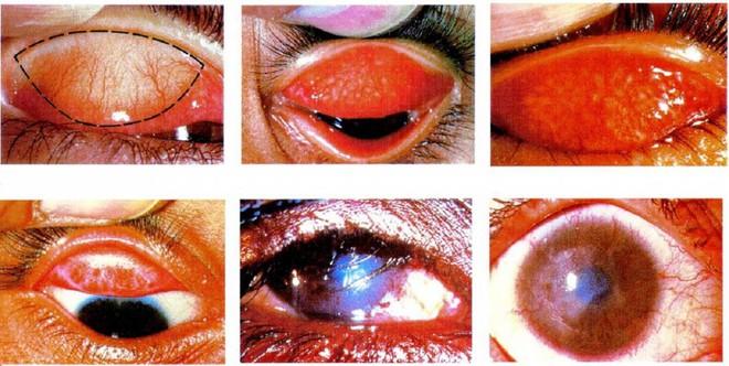 Phòng ngừa đau mắt mùa bão lũ - Ảnh 1.