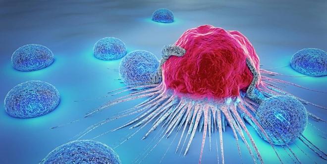 Trang web y tế nổi tiếng của Mỹ tiết lộ 10 tác nhân gây ung thư: Giật mình vì hầu hết rất quen thuộc - Ảnh 3.