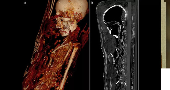Máy quét CT phát hiện sự thật rùng rợn bên trong bức tượng dát vàng - Ảnh 2.