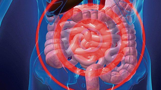 Những tín hiệu cảnh báo nội tạng của bạn quá bẩn: Hãy đối chiếu và nhanh chóng làm sạch - Ảnh 6.