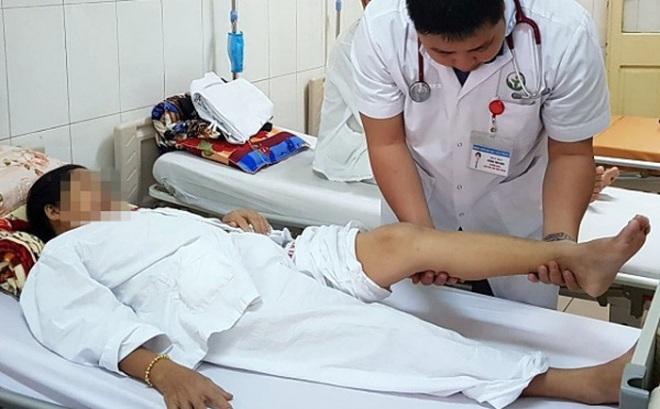 70% nữ giới bị suy giãn tĩnh mạch chân: Chuyên gia Bệnh viện Việt Đức khuyến cáo gì?