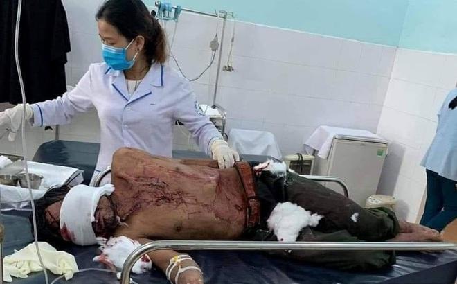Tin mới vụ người đàn ông bị gấu rừng tấn công ở Quảng Nam