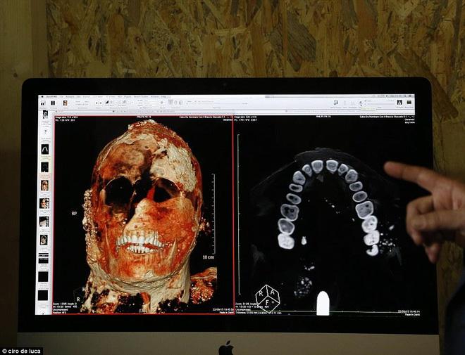 Chụp CT thi thể 'hóa đá' của nạn nhân thảm họa Pompeii: 'Cái chết của họ quá khủng khiếp' - Ảnh 6.